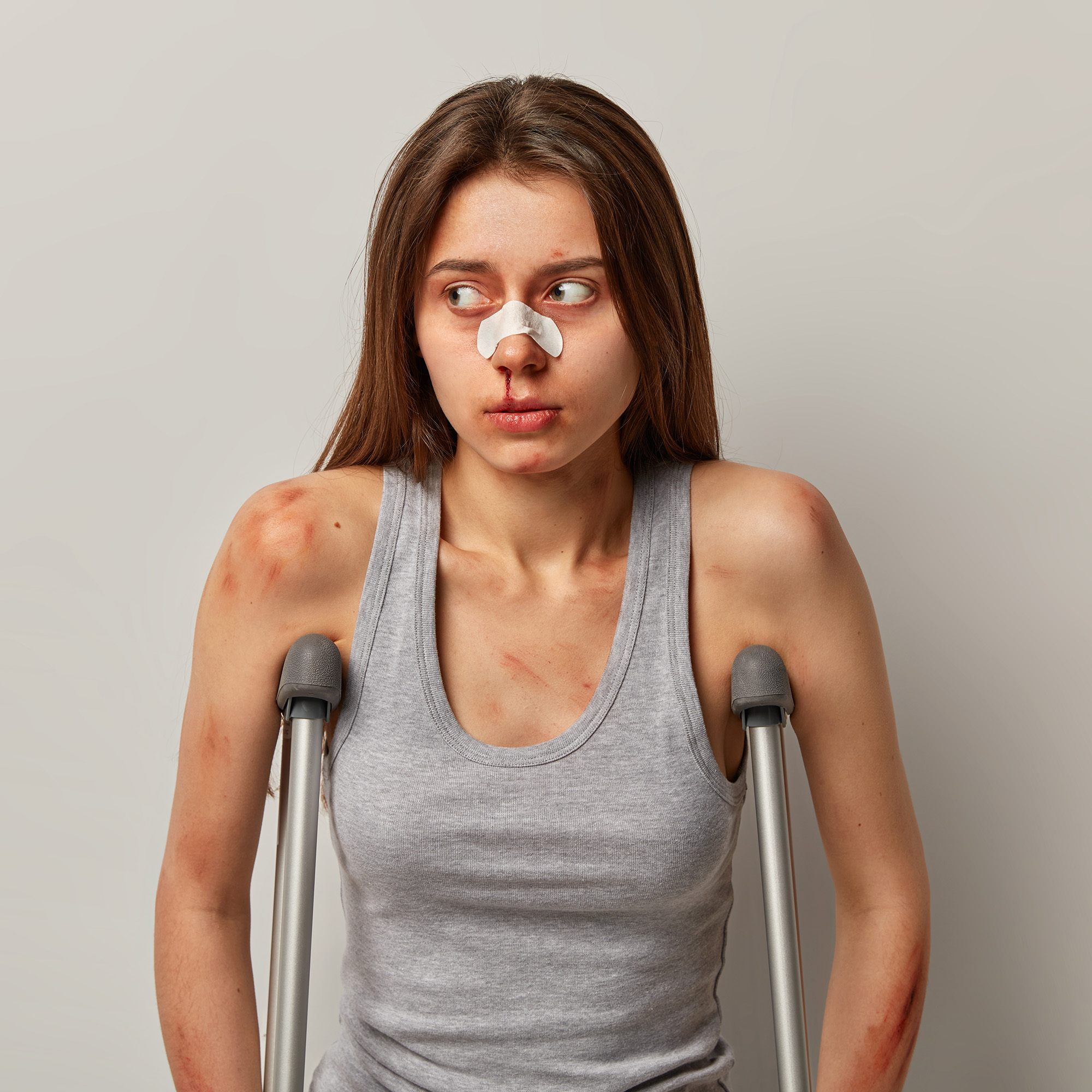Photo of displeased woman suffers from consequences of ladder or roofing accident looks aside at blank space has much abrasion on body poses with crutches isolated over grey background. Driver failure